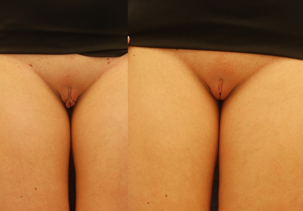Actual patient of Dr. Devgan, before and 3 months after labiaplasty. This is a young woman with labia minora excess corrected with a modified wedge technique. This surgery was done under local anesthesia only.