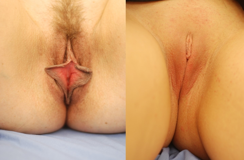 Actual patient of Dr. Devgan, before and 3 months after labiaplasty.   This is a young woman with l  abia minora excess corrected with a modified   wedge technique. This surgery was done under local anesthesia only.