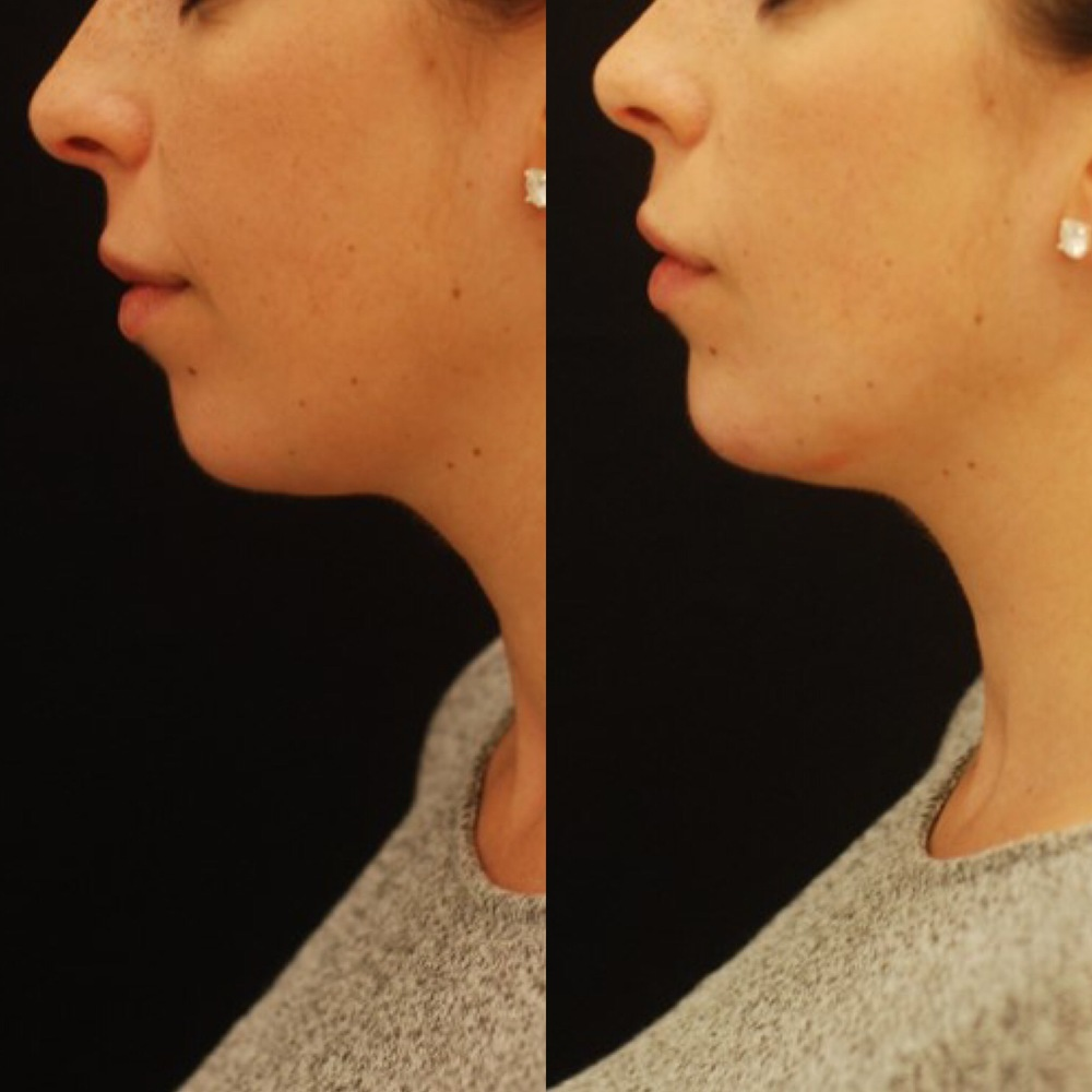 Chin augmentation with injectable filler. Actual patient of Dr. Devgan