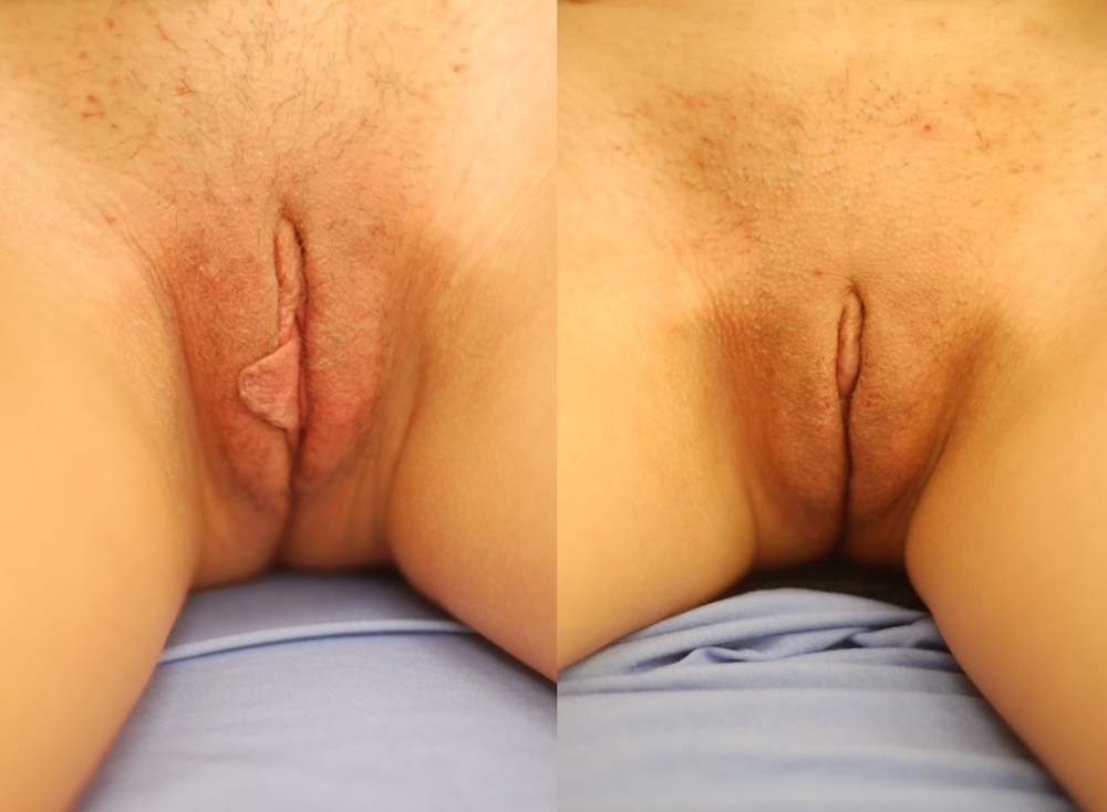 Actual patient of Dr. Devgan, before and after labiaplasty. 1 month post-operative
