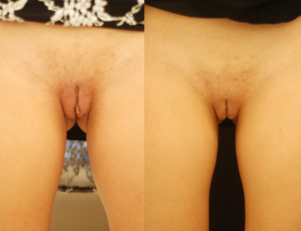 Actual patient of Dr. Devgan, before and after labiaplasty. 6 weeks post-operative