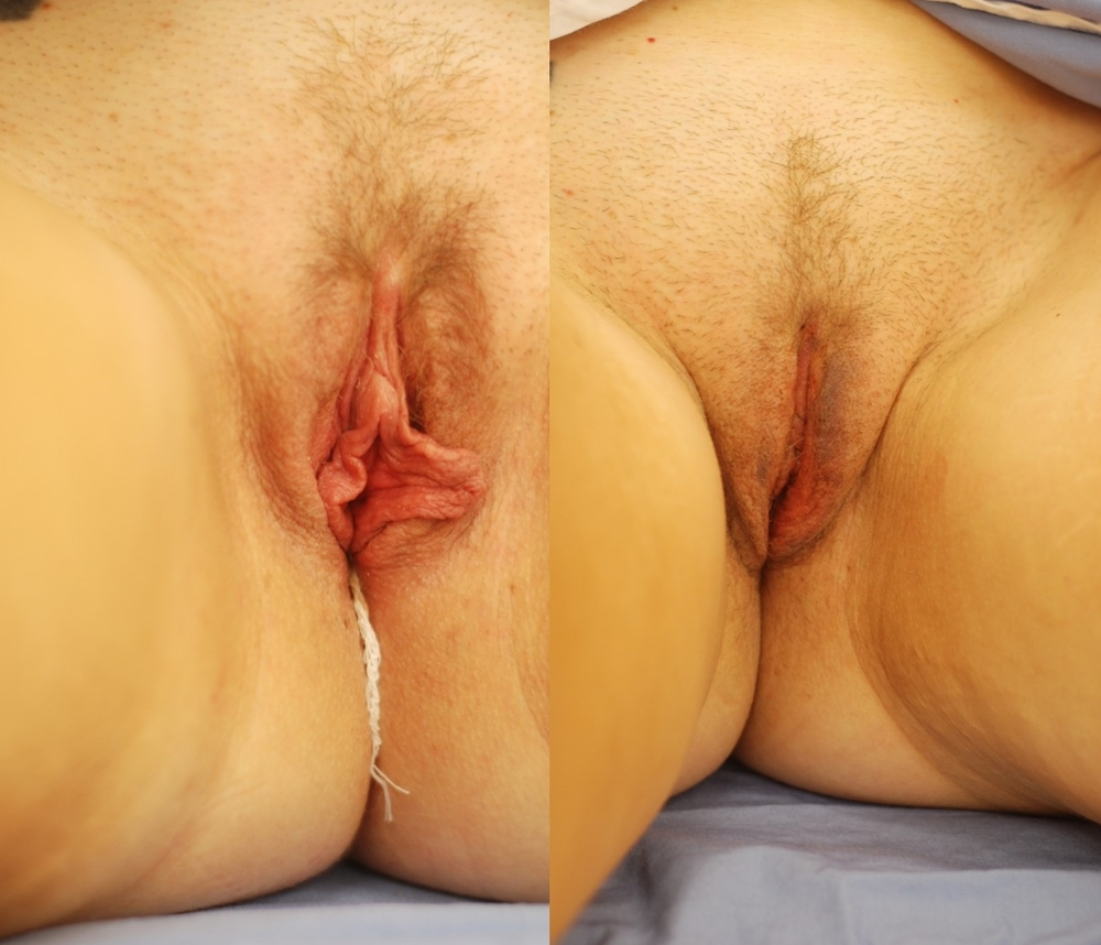 Actual patient of Dr. Devgan, before and after labiaplasty. 6 days post-operative
