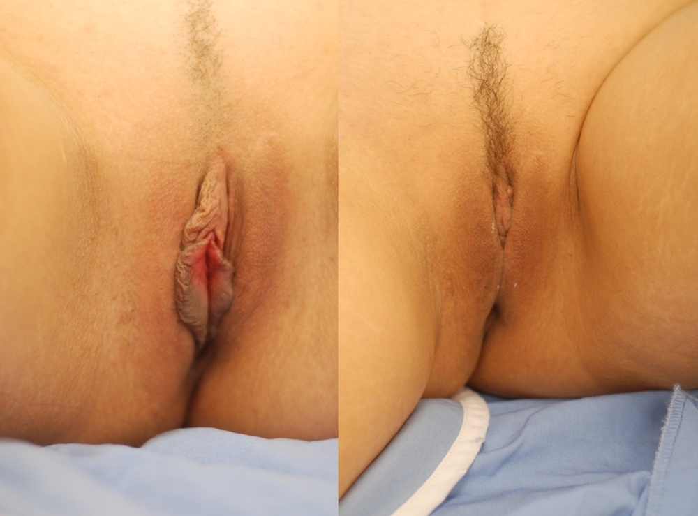 Actual patient of Dr. Devgan, before and after revision (corrective) labiaplasty. 1 month post-operative