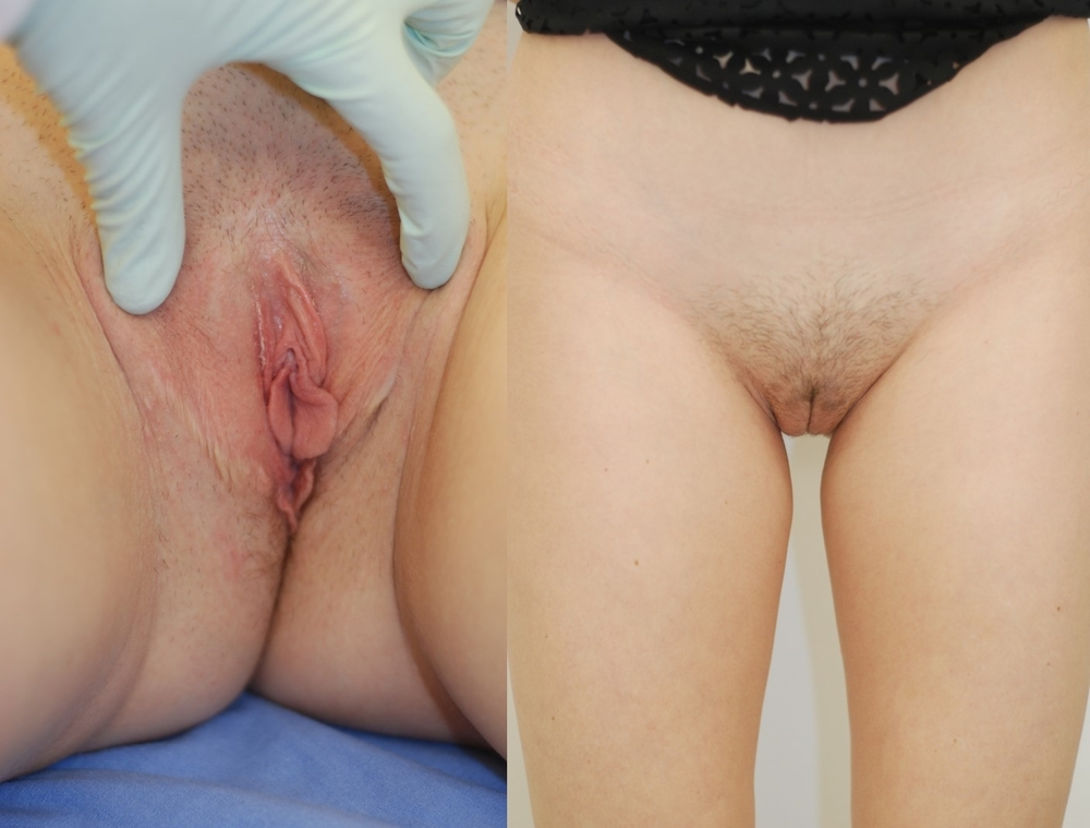 Actual patient of Dr. Devgan, before and after revision (corrective) labiaplasty. 1 week post-operative