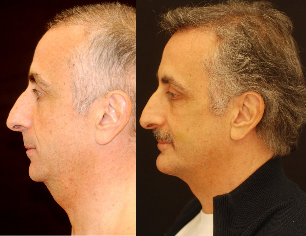 Chin augmentation with chin implant. Adjunctive procedures: necklift, submental liposuction. Actual patient of Dr. Devgan