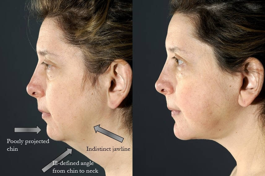 Chin augmentation with osseus genioplasty. Adjunctive procedures: necklift, blepharoplasty, fat grafting. Actual patient of Dr. Devgan