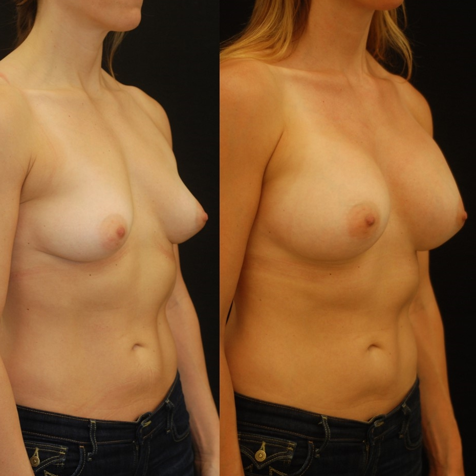 Actual patient of Dr. Devgan, before and 2 months after breast augmentation with internal lift.