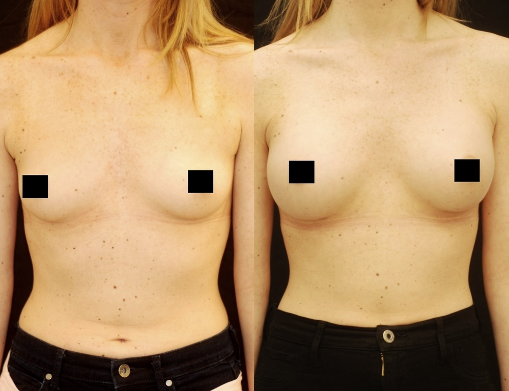 Gummy breast implants before and after