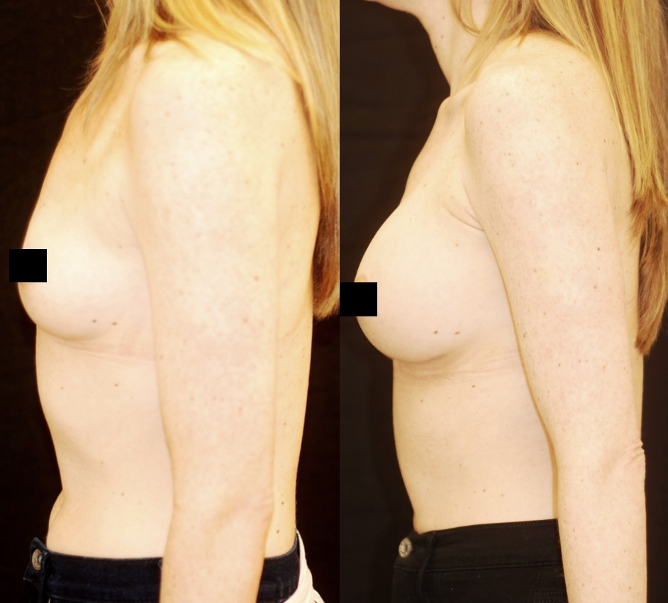 Actual patient of Dr. Devgan, before and after breast augmentation with highly cohesive gel silicone implants.