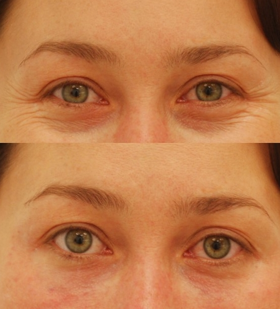 Actual patient of Dr. Devgan, before (above) and after (below) Botox injection for crows feet and Juvederm filler injection for tear troughs (under eye dark circles).