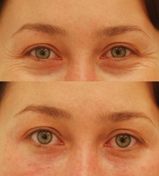 Non-surgical eye rejuvenation — Lara Devgan, MD, MPH, FACS