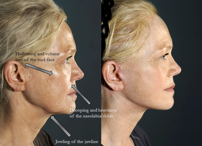 Actual patient of Dr. Devgan, before and after facelift