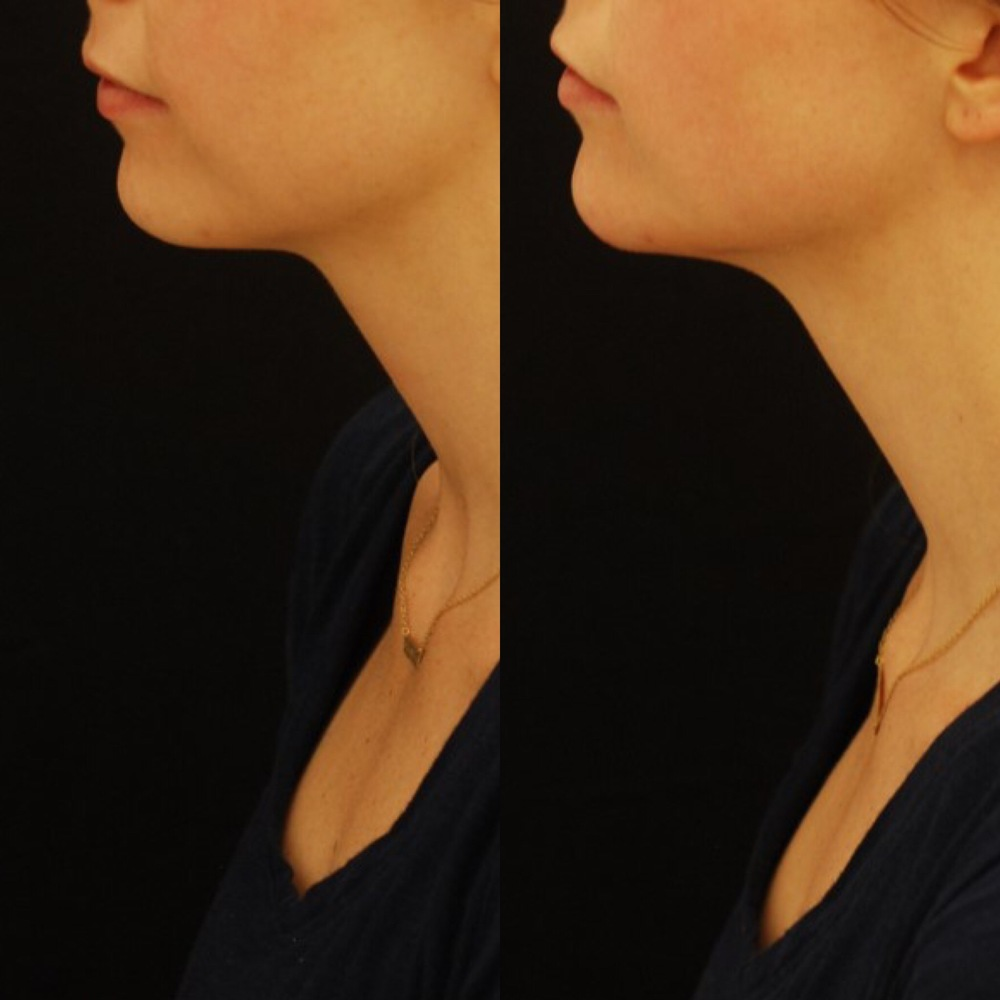 Actual patient of Dr. Devgan, before and after chin augmentation