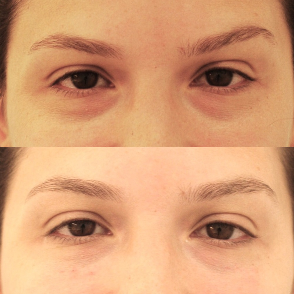 Actual patient of Dr. Devgan, before and after tear trough fillers