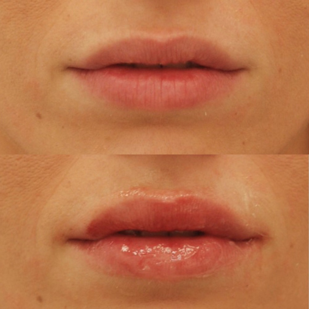 Actual patient of Dr. Devgan, before and after lip fillers