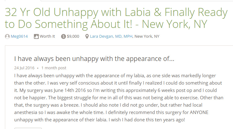 Verified patient review from a labiaplasty patient, via RealSelf.com