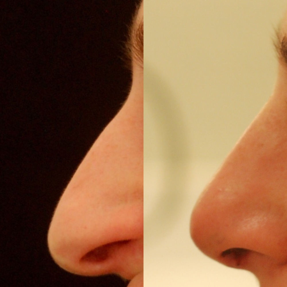 Actual patient of Dr. Devgan, before and 1 week after rhinoplasty.