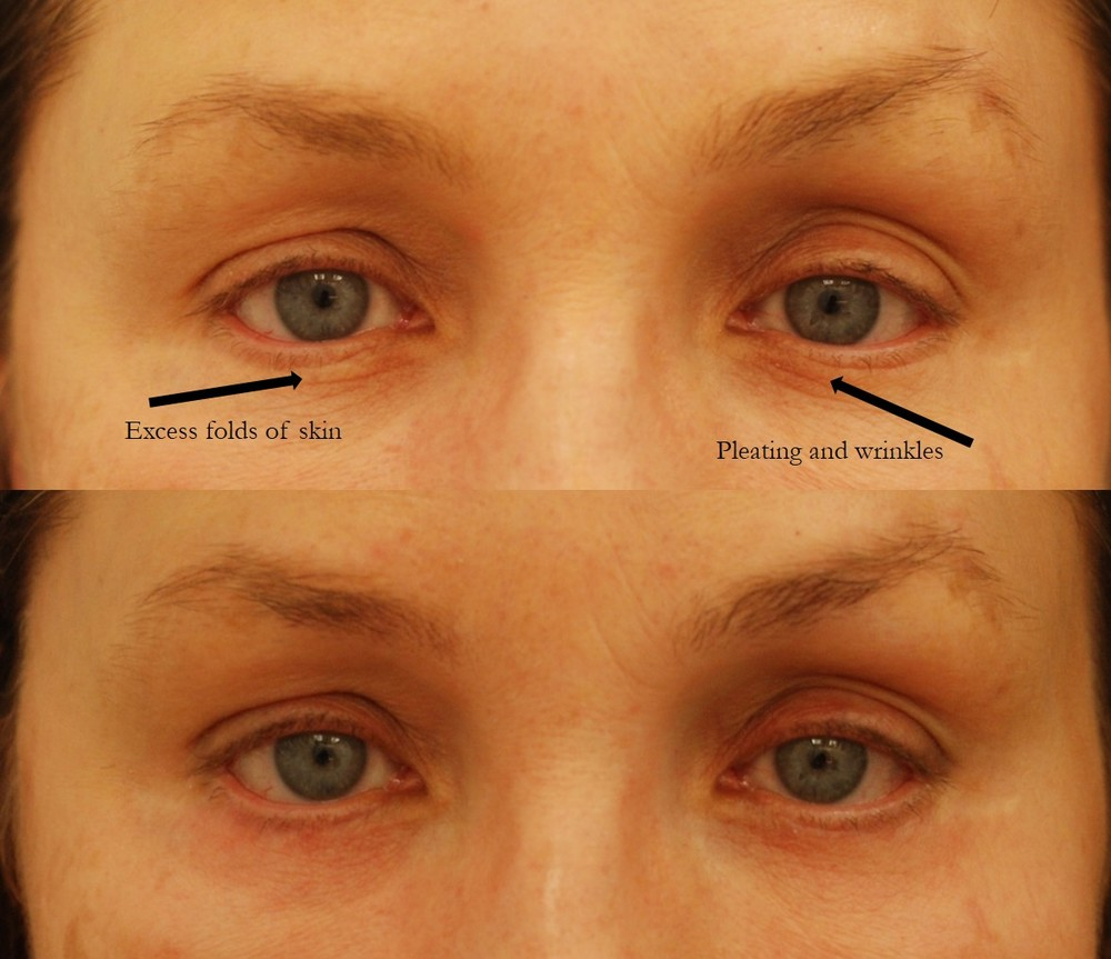 Actual patient of Dr. Devgan, before and after revision lower eyelid blepharoplasty.