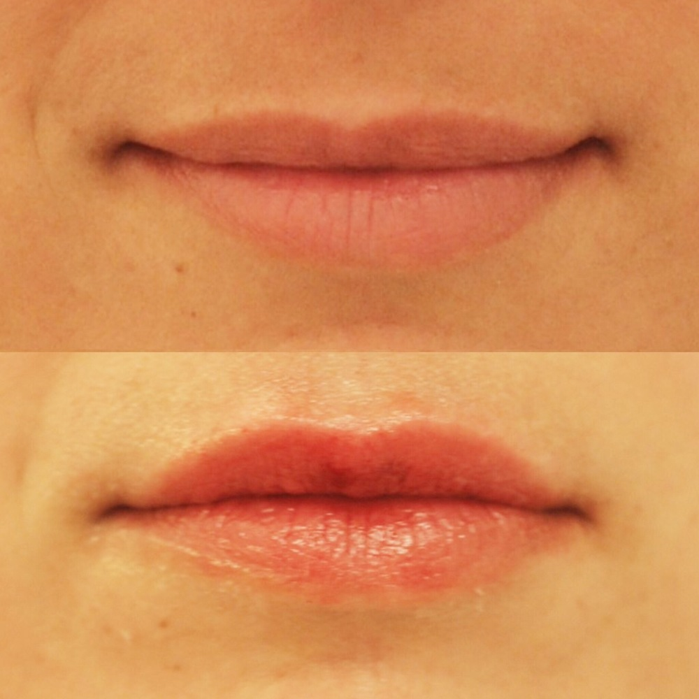 Actual patient of Dr. Devgan, before and after lip augmentation