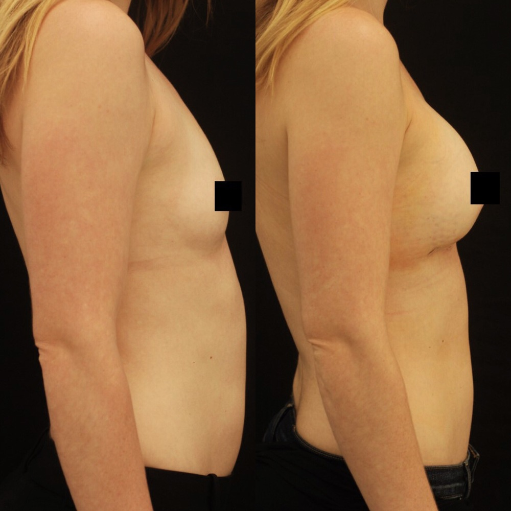 Actual patient of Dr. Devgan, before and 2 days after breast augmentation