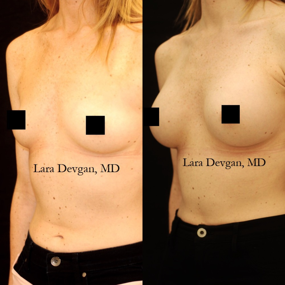Actual patient of Dr. Devgan, before and 2 months after breast augmentation