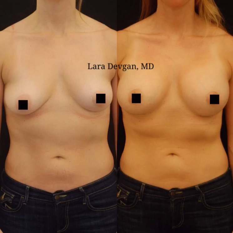 Actual patient of Dr. Devgan, before and 3 months after breast augmentation