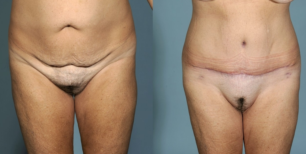 Actual patient of Dr. Devgan, before and after abdominoplasty (tummy tuck), NYC.
