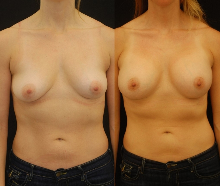 Actual patient of Dr. Devgan, before and after scarless internal breast lift (mastopexy) and breast augmentation.