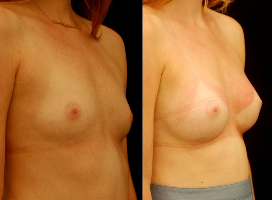 Actual patient of Dr. Devgan, before and after breast augmentation, with a rapid recovery technique and minimal downtime