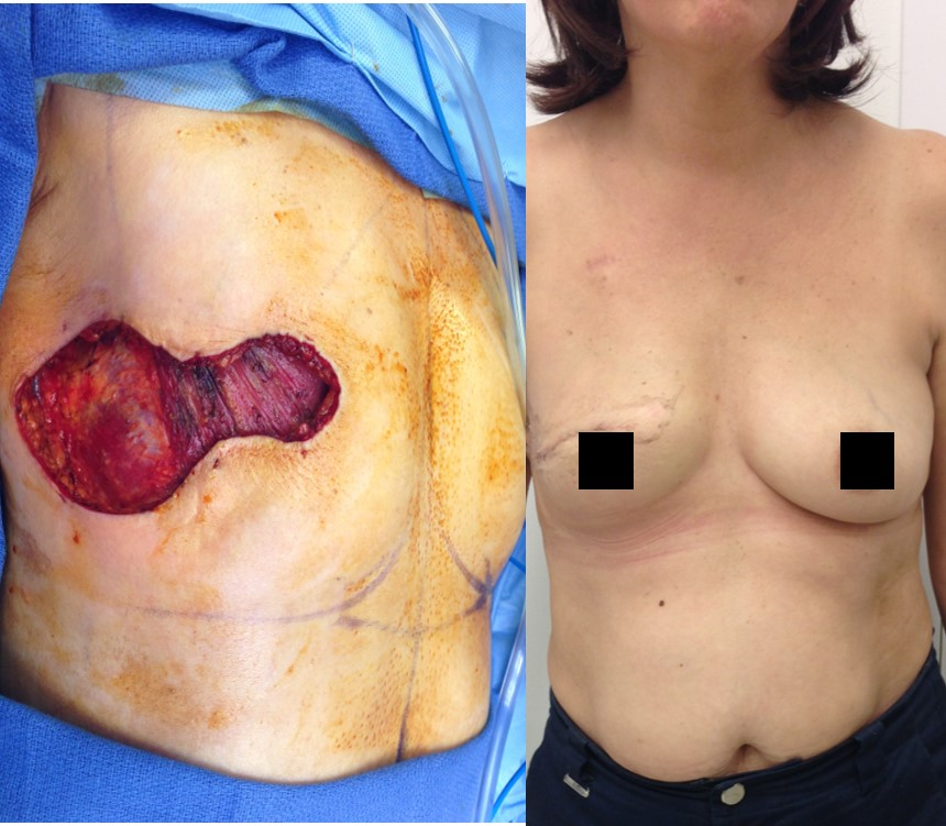 Actual patient of Dr. Devgan, before and after breast cancer reconstruction.