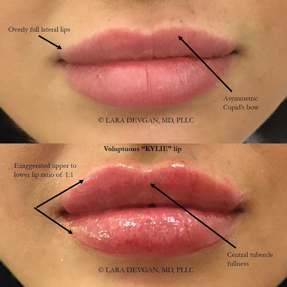 "Actual patient of Dr. Devgan, before and after lip augmentation with a dramatic ""Kylie Jenner lips"" style look."