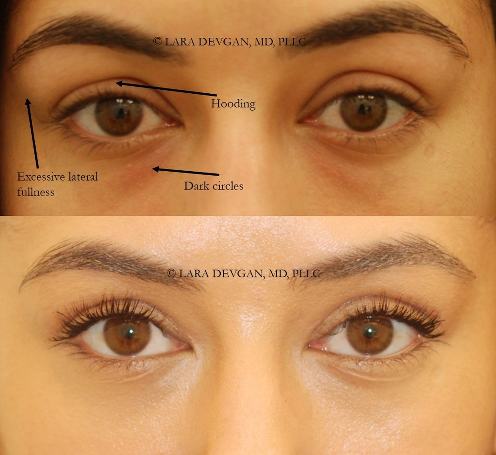 Actual patient of Dr. Devgan, before and 2 weeks after upper and lower eyelid blepharoplasty.