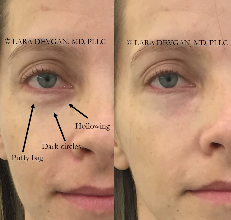Actual patient of Dr. Devgan, before and immediately after injectable tear trough filler.