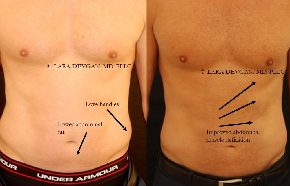 Actual patient of Dr. Devgan, before and after abdominal etching (abdominal liposuction/ liposculpture)