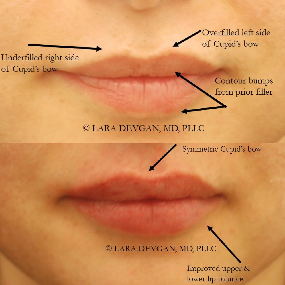 Ways to increase the upper and lower lips independently