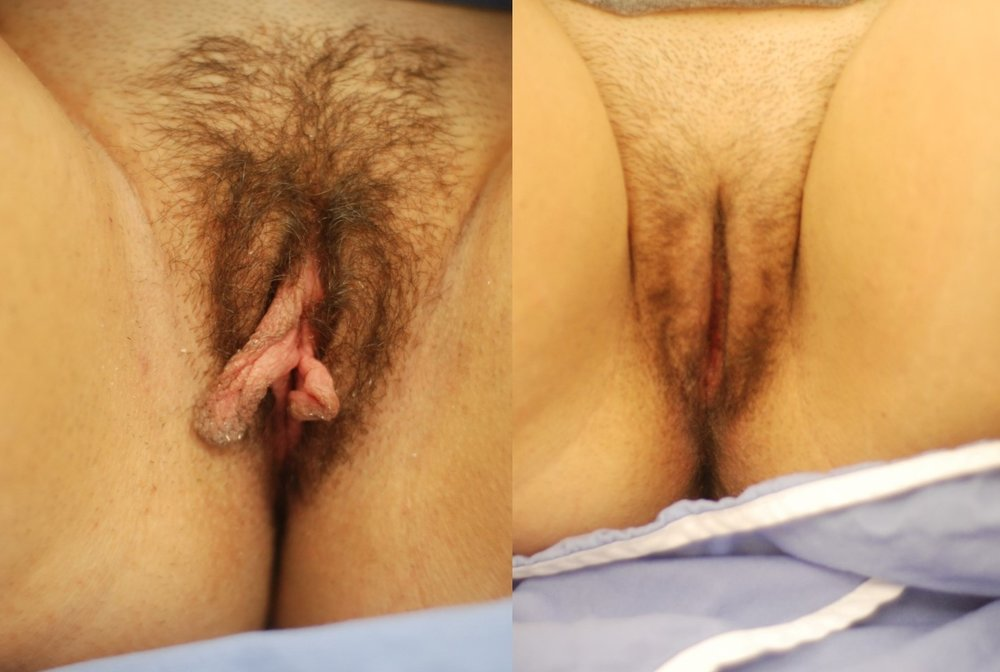 Actual patient of Dr. Devgan, before and after labiaplasty
