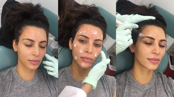 Click to watch my full treatment video with Kim on her app.