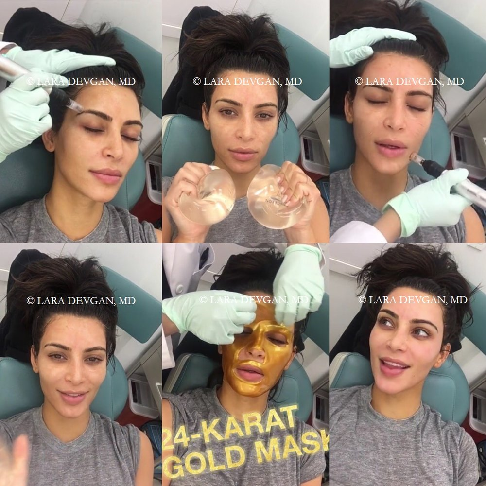Kim Kardashian's Microneedling Facial with Dr. Lara Devgan. Click to see a video of this procedure on Kim's app.