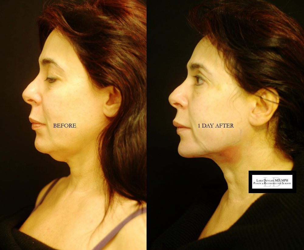 Actual patient of Dr. Devgan, before and 1 day after submental liposuction