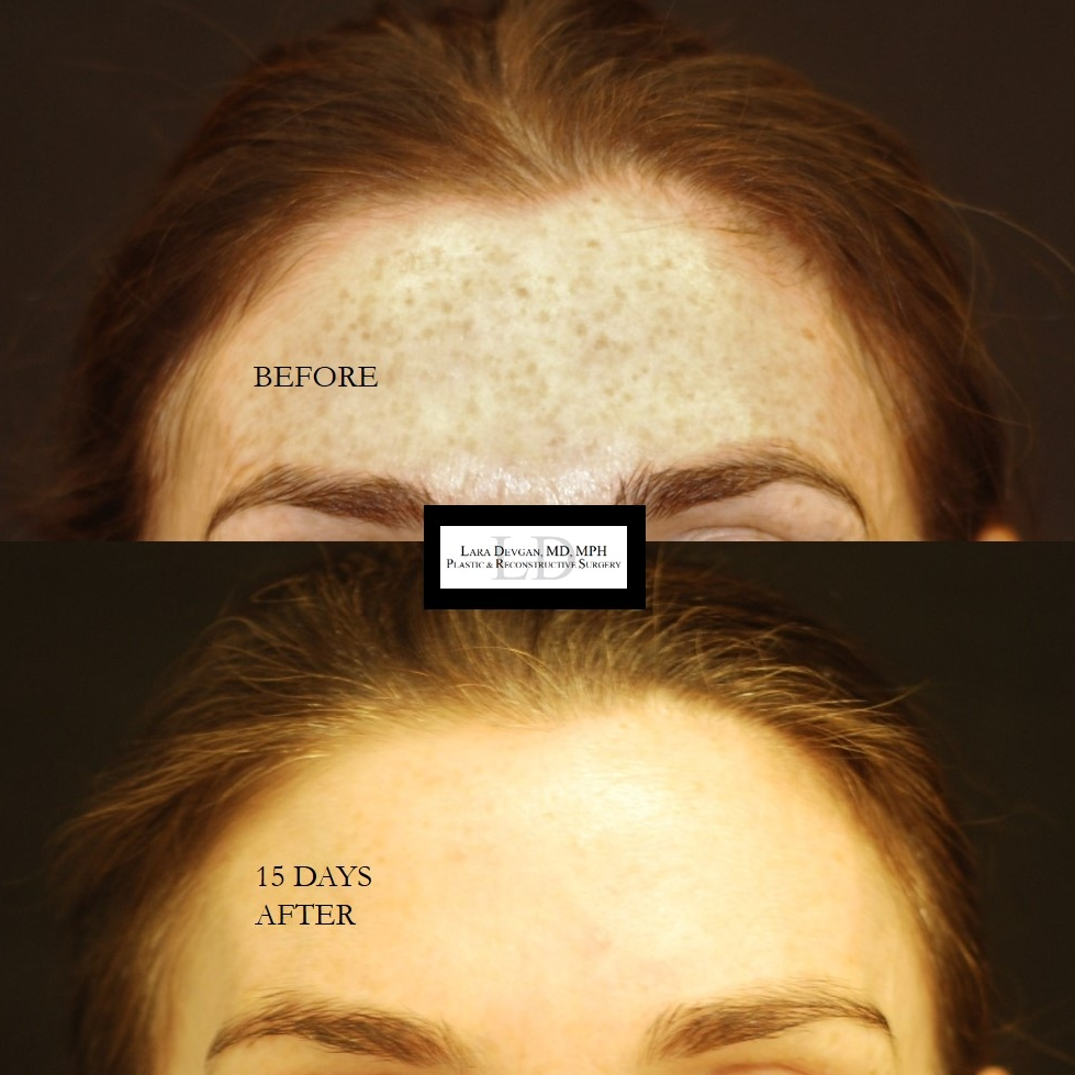 Actual patient of Dr. Devgan, before and after deep chemical peel.