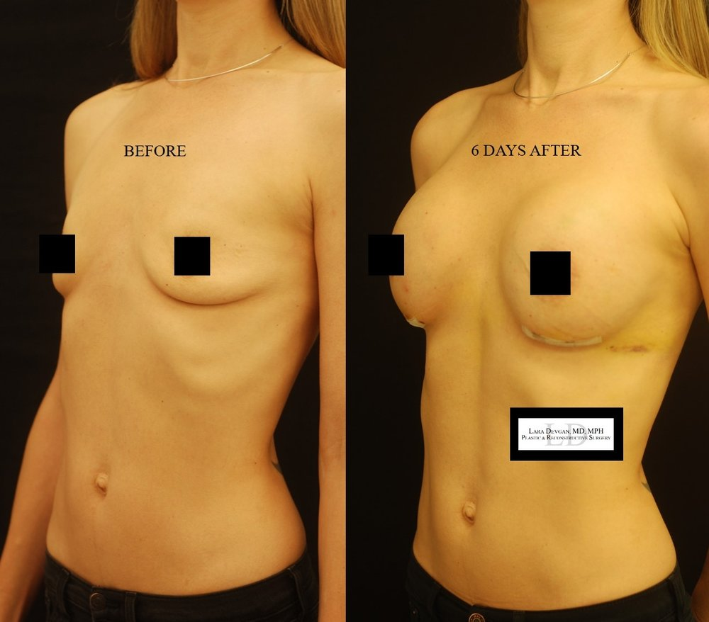 Actual patient of Dr. Devgan, before and after breast augmentation