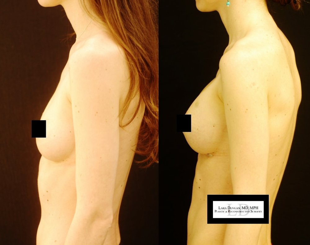 Actual patient of Dr. Devgan, before and 1 week after breast augmentation