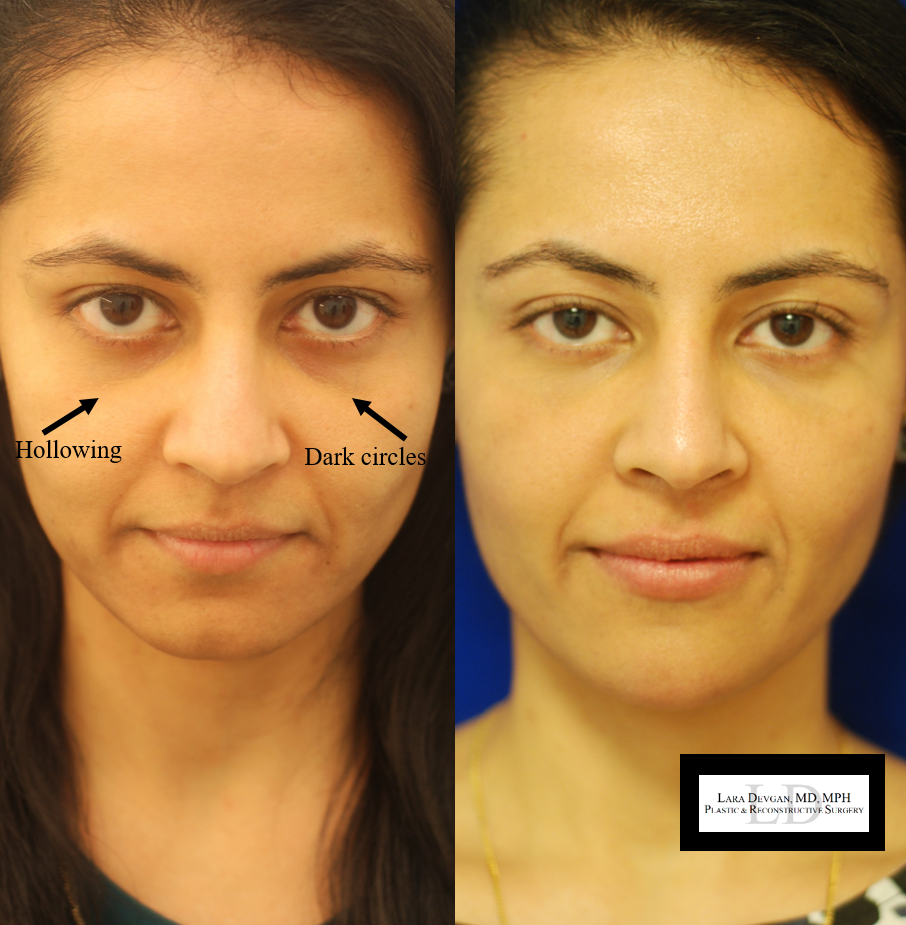 Actual patient of Dr. Devgan, before and after tear trough augmentation. New York City, New York