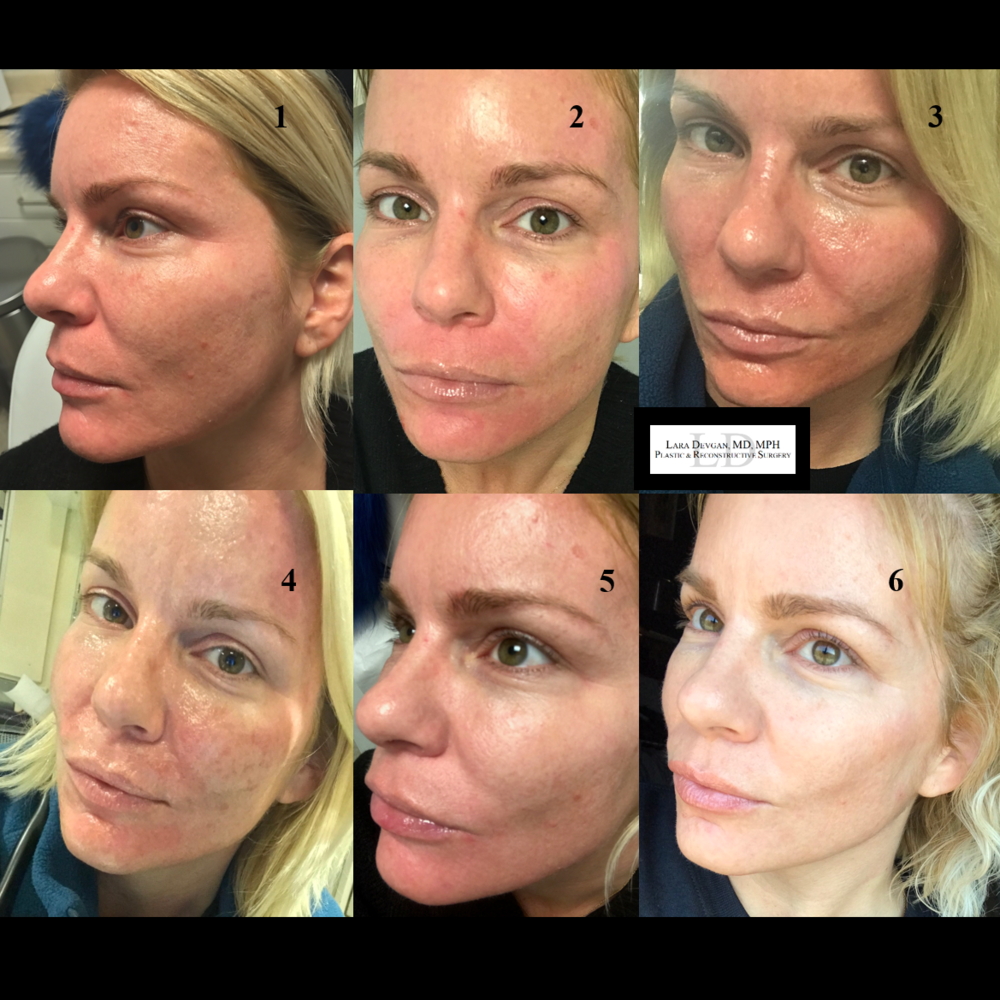 Actual patient of Dr. Devgan, during her chemical peel progression over the course of 10 days.