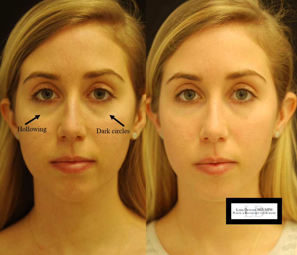Actual patient of Dr. Devgan, before and 2 days after tear trough augmentation with injectable filler.