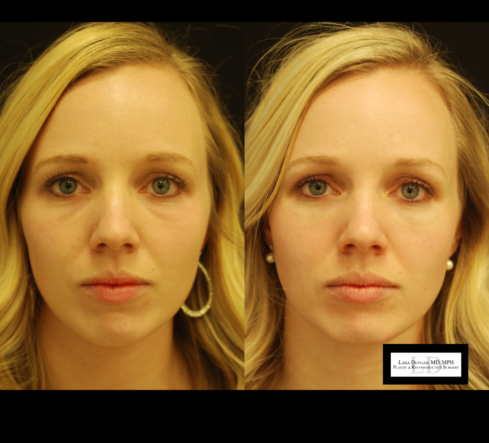 Actual patient of Dr. Devgan, before and 2.5 weeks after tear trough augmentation with injectable filler.