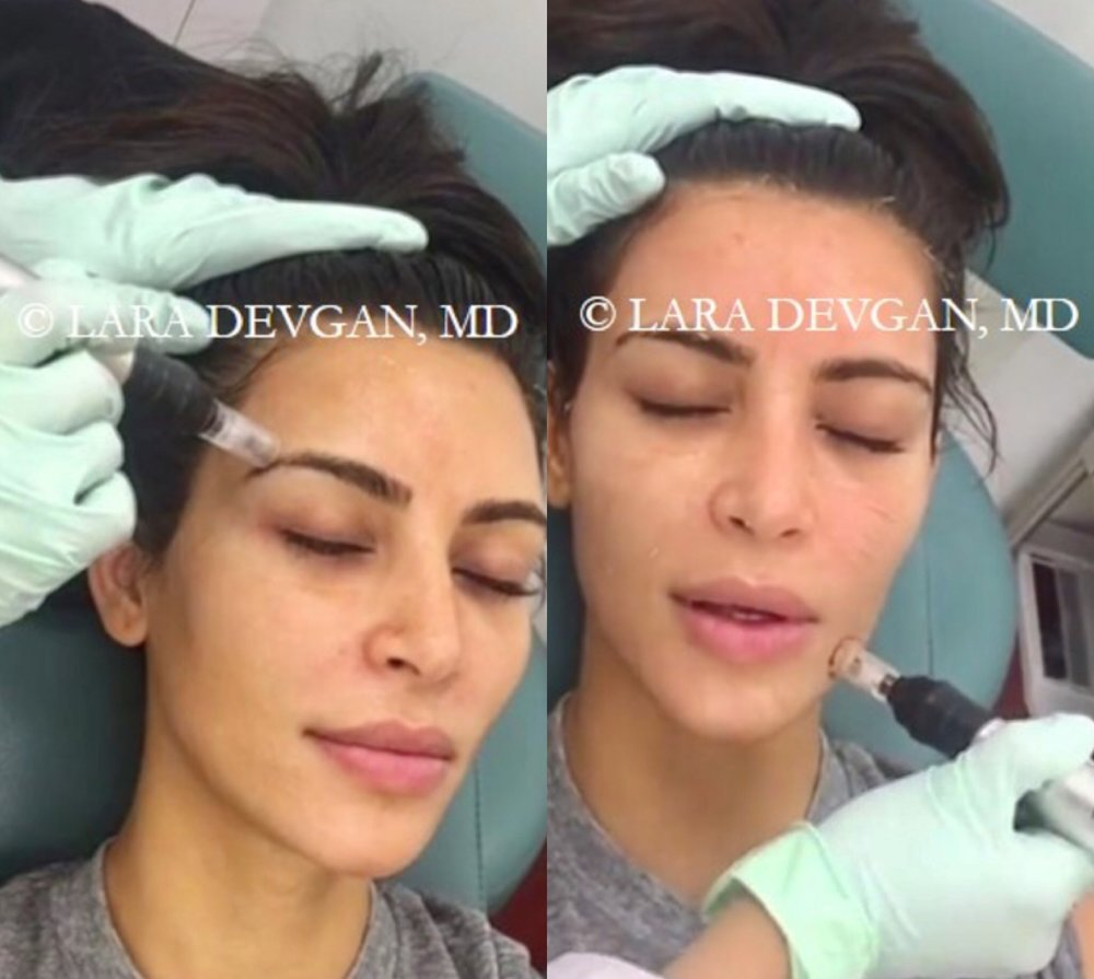 Kim Kardashian receiving a micro needling treatment at Dr. Devgan's private practice in the Upper East Side, New York, NY