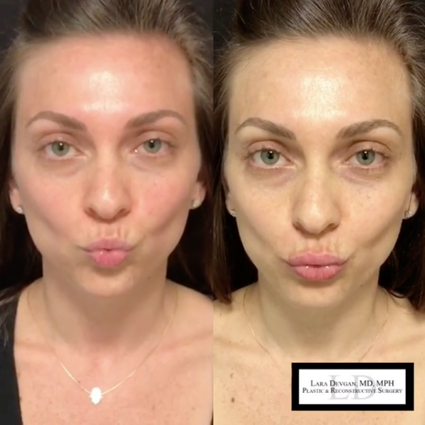 what does it take to get the perfect pout? — Lara Devgan, MD