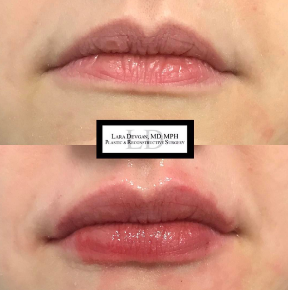 Visibly fuller-looking lips that look natural and are customized to the patient's needs