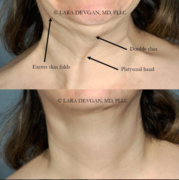 Procedure for patient with 'double-chin.' Upper East Side, New York, NY